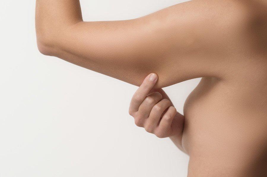 Tratamento para Flacidez - Estética Priscila Palazzo